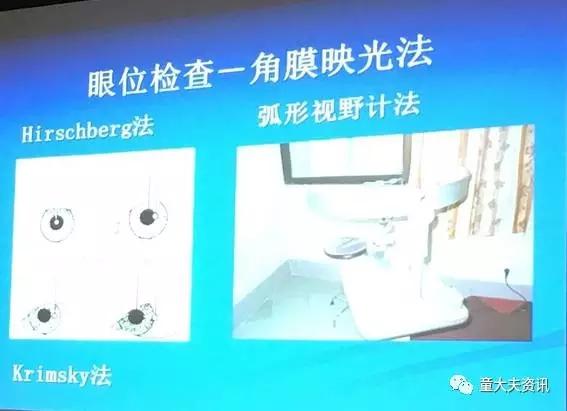 上海市五官科医院姚静:斜视的检查
